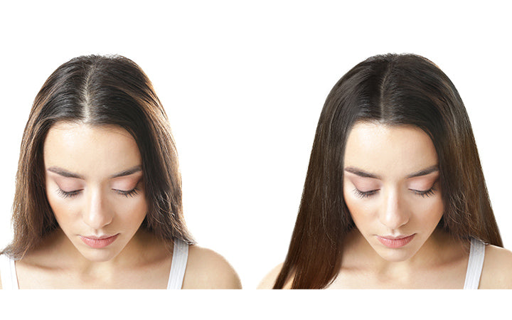 woman before and after hormonal hairloss treatment