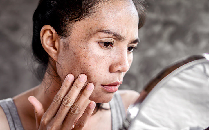 woman checking freckles on face in mirror