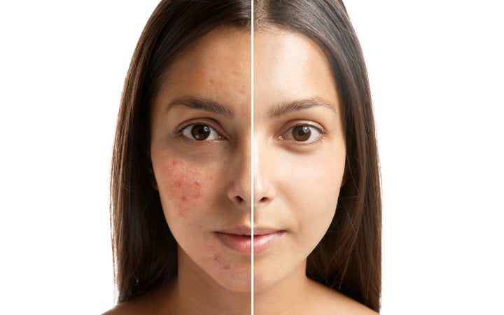 woman face before and after acne treatment
