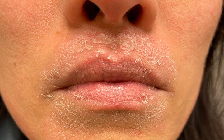 woman suffering from topical steroid withdrawal