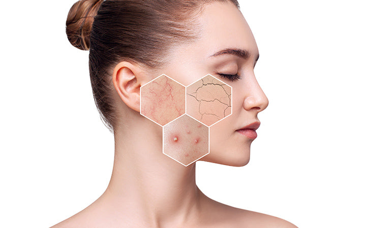 woman with acne on face
