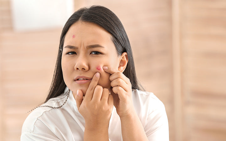 woman with acne problem squishing pimples