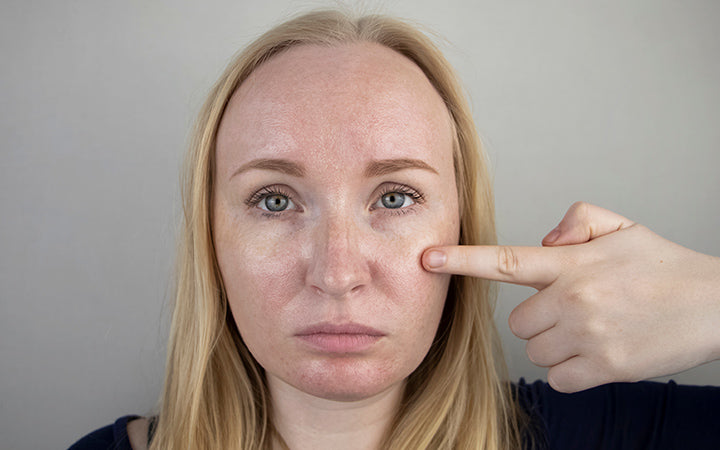 woman with combination skin