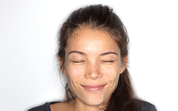 woman with different skin care problems on face