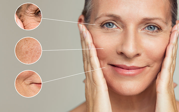 woman with different types of wrinkles