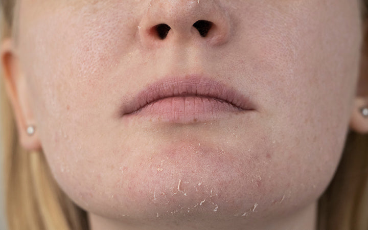 woman with dry skin on her face