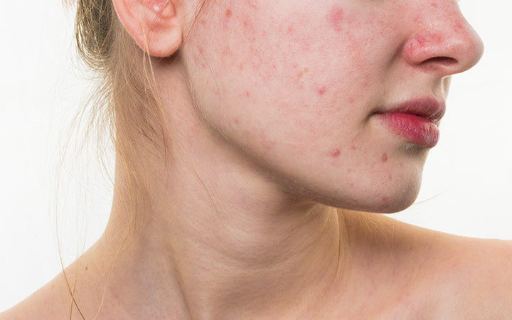 woman with problematic skin on face