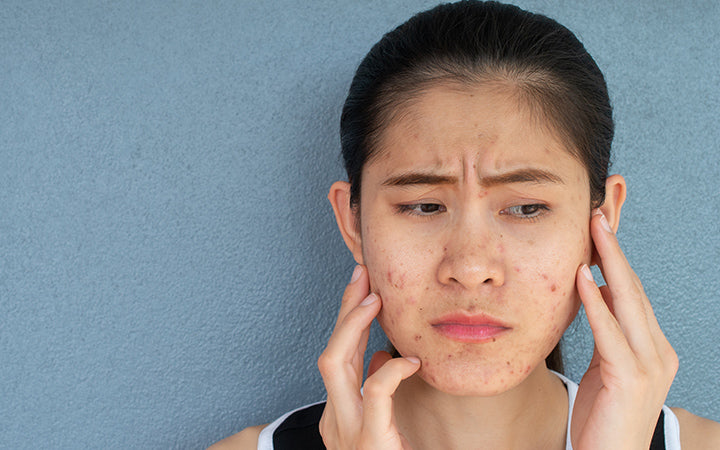 woman with problems of acne inflammation