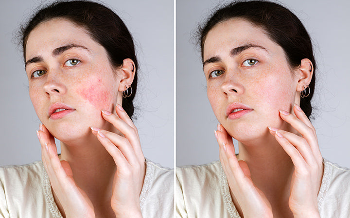 woman with rosacea.before and after