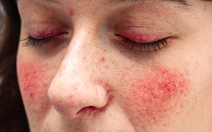 woman with severe case of rosacea