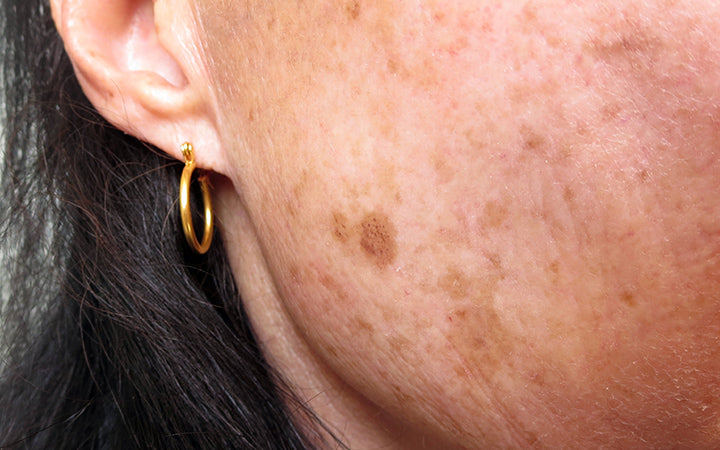 woman with uneven skin tone