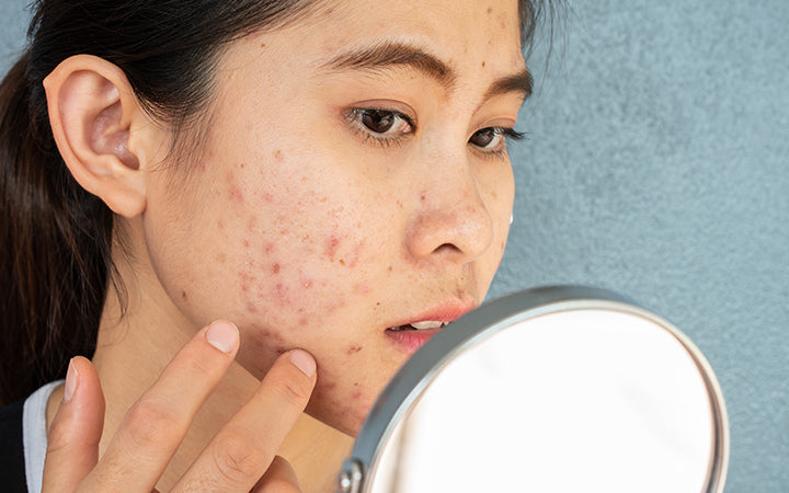 woman worrying about acne inflammation