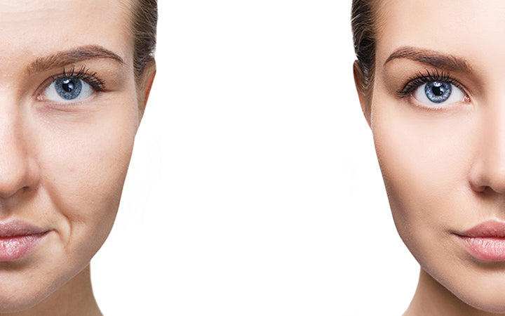 woman's face before and after rejuvenation