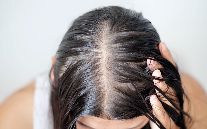 women with thin hair