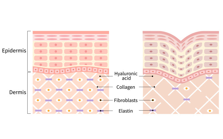 young skin and saggy skin structure