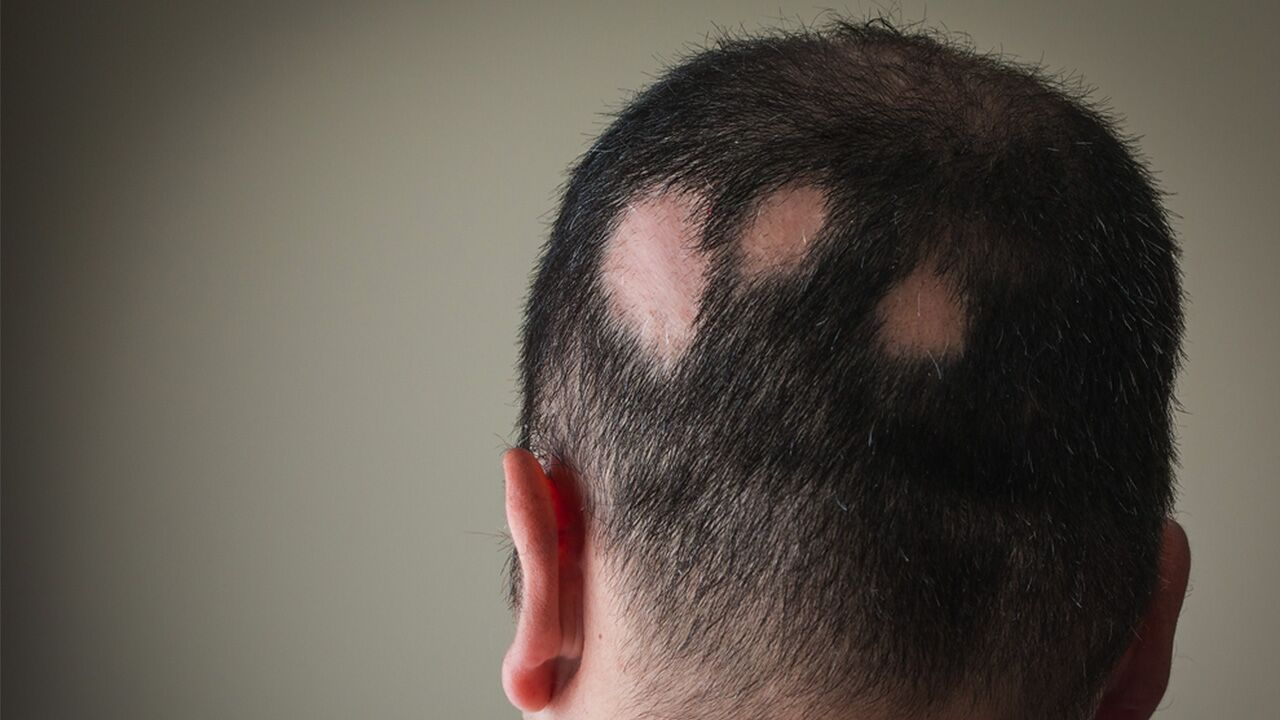 Alopecia areata, also referred to as spot baldness, is an autoimmune disease.