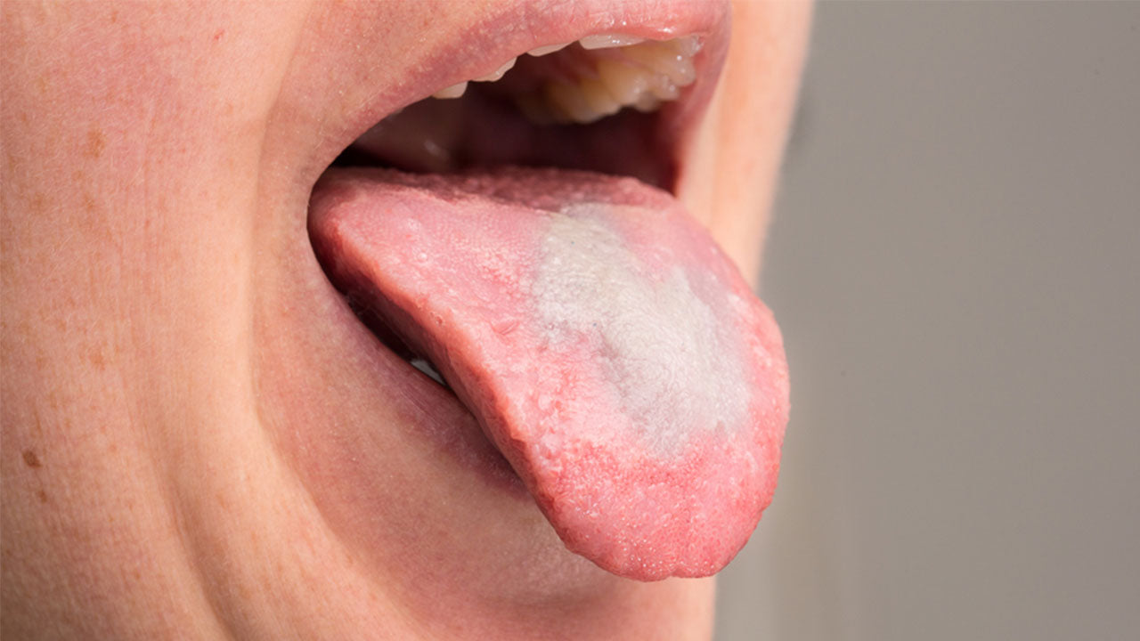 How to Treat Oral Thrush