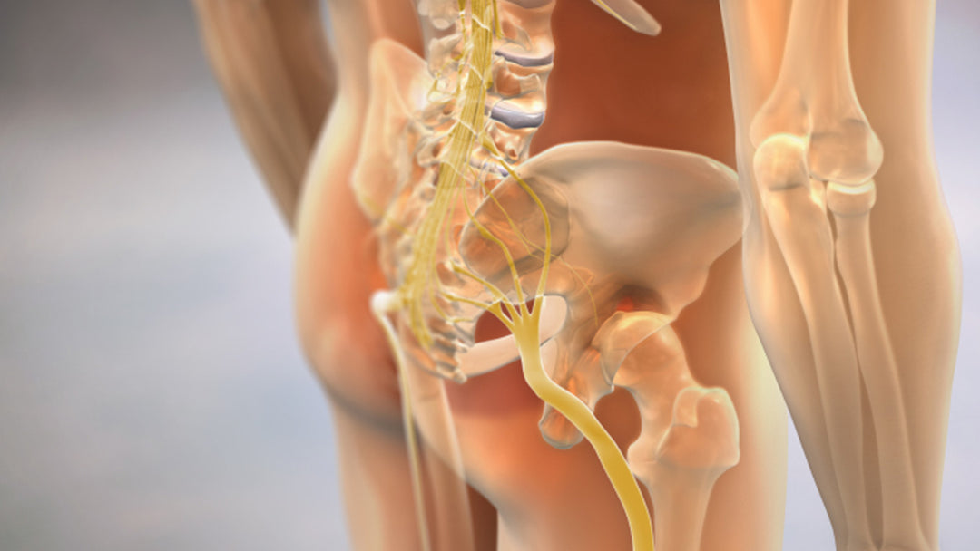 3d illustration of sciatica pain