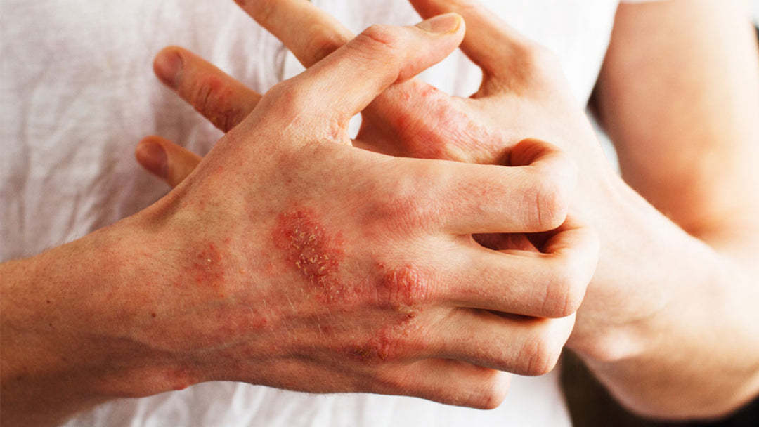 The psoriasis diet can help bring relief