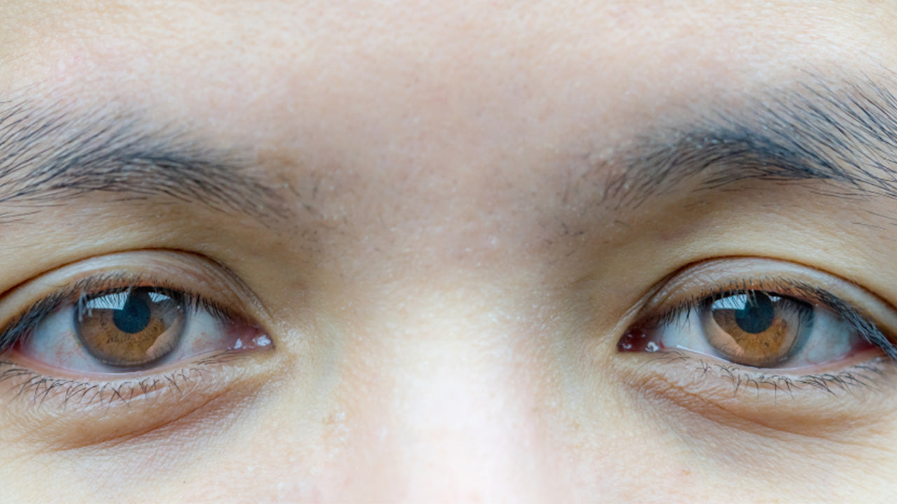 Ptosis is the medical term for droopy eyelid