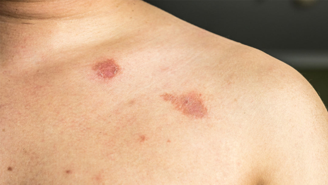 Ringworm causes, symptoms and remedies