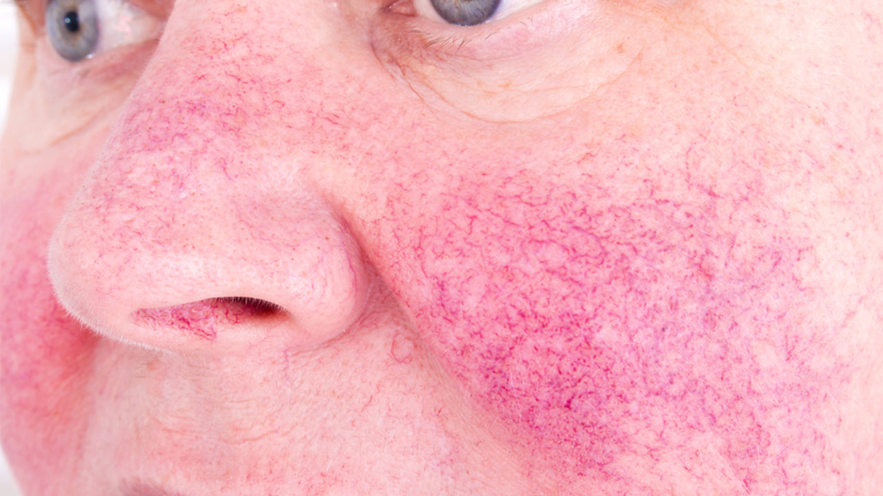 Rosacea manifests as abnormal facial redness