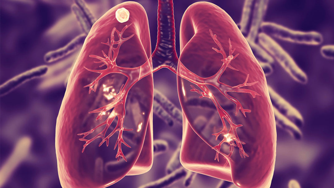 3d illustration of lungs with tuberculosis