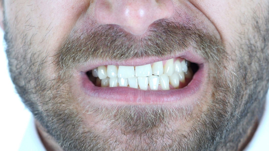 Bruxism is the medical term for grinding your teeth.