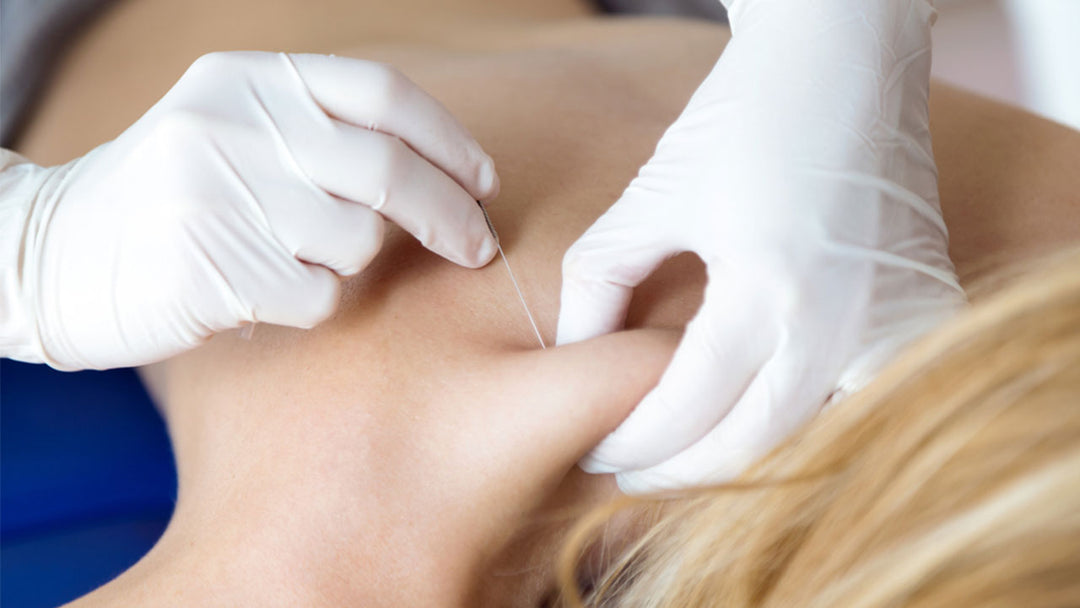 Trigger point injections: how they work
