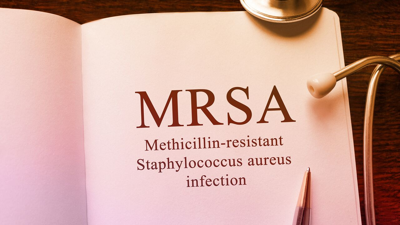 The facts about MRSA