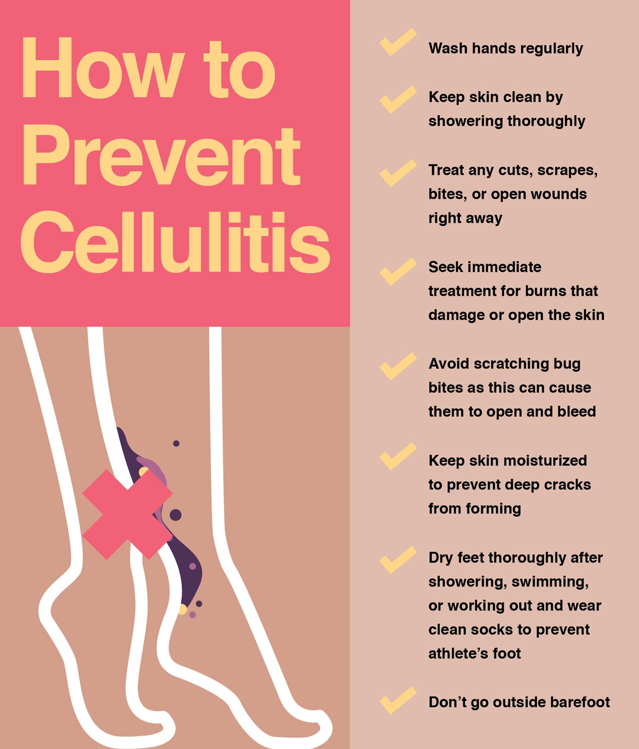 How to prevent cellulitis