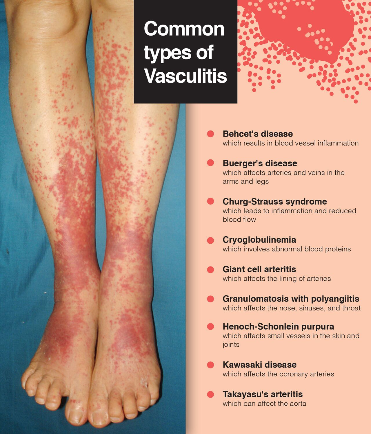 Early detection is the best way to prevent vasculitis