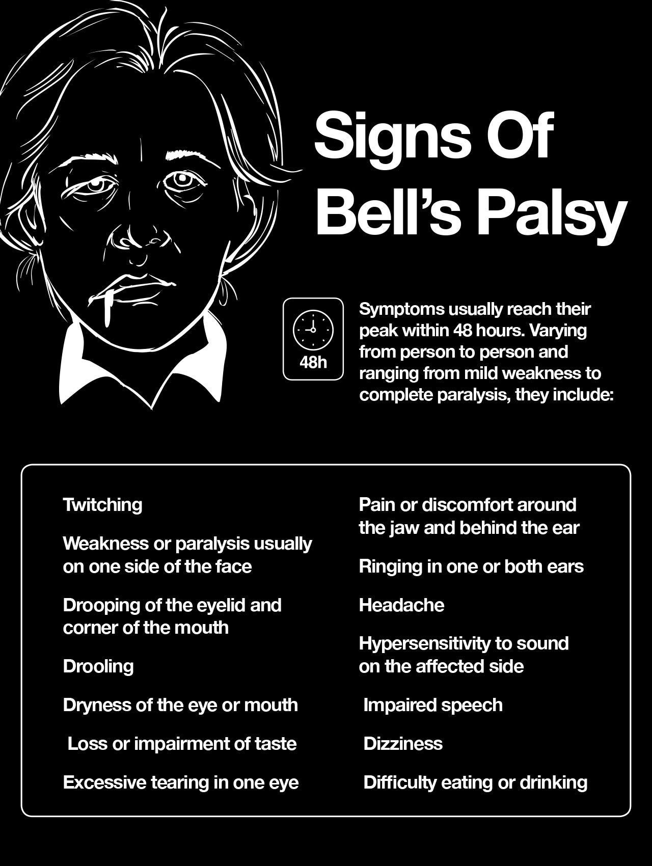 Signs of Bell's palsy