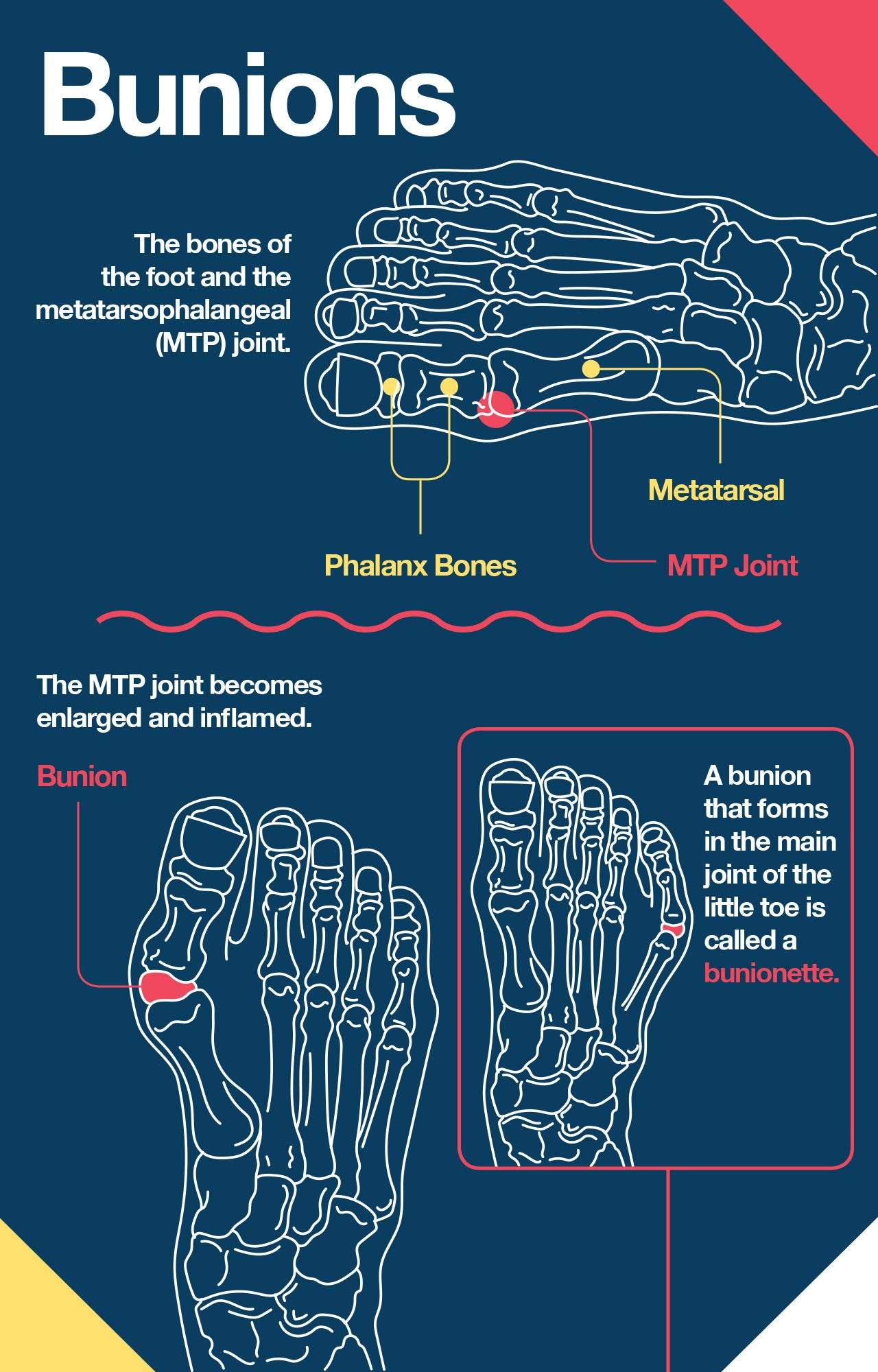 How bunions form
