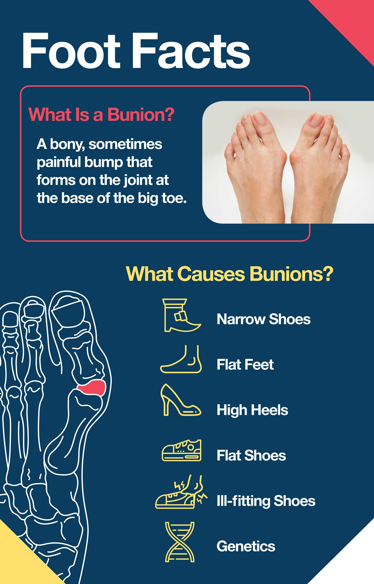 bunion foot facts