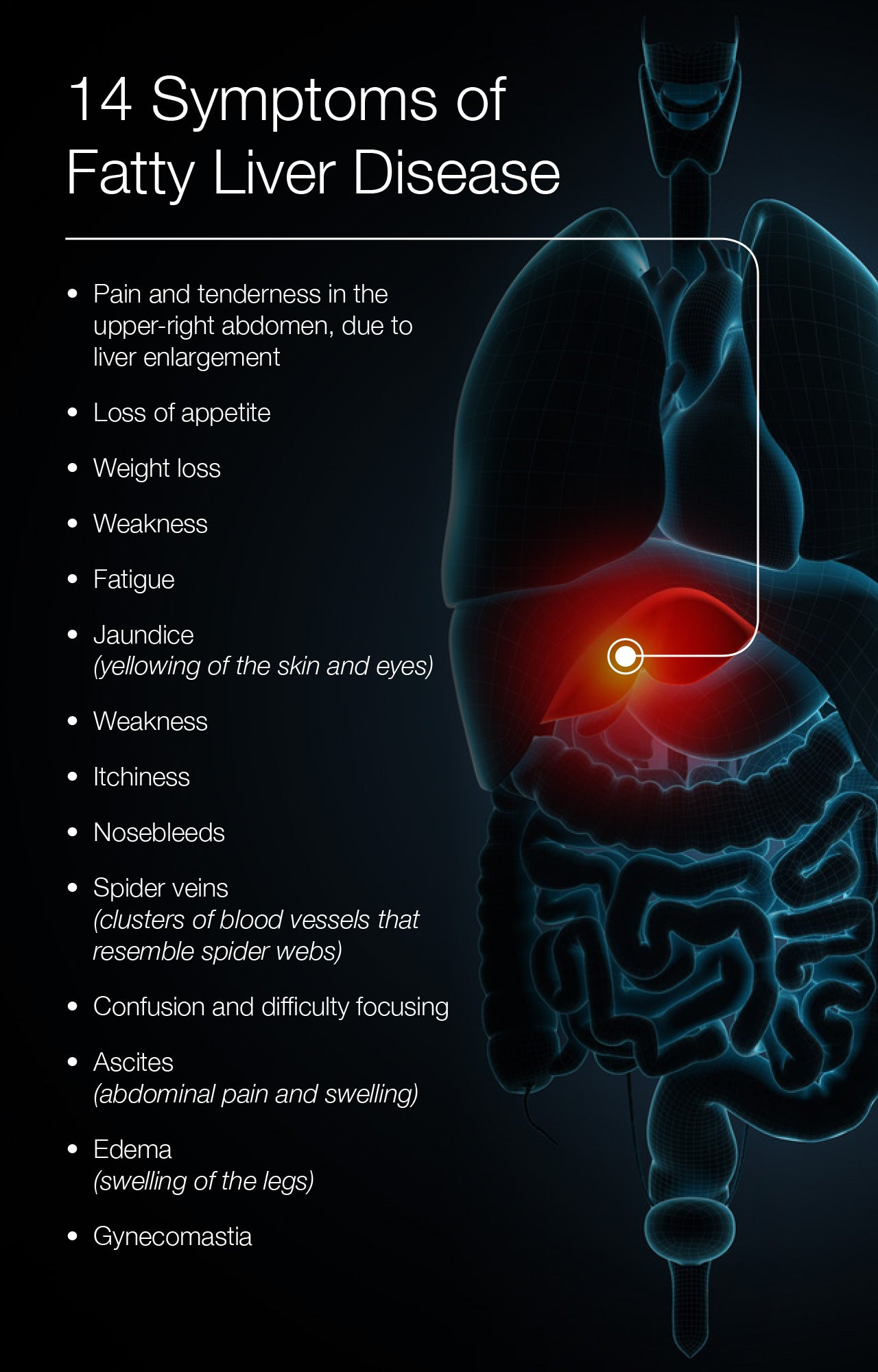 14 Symptoms of Fatty Liver Disease