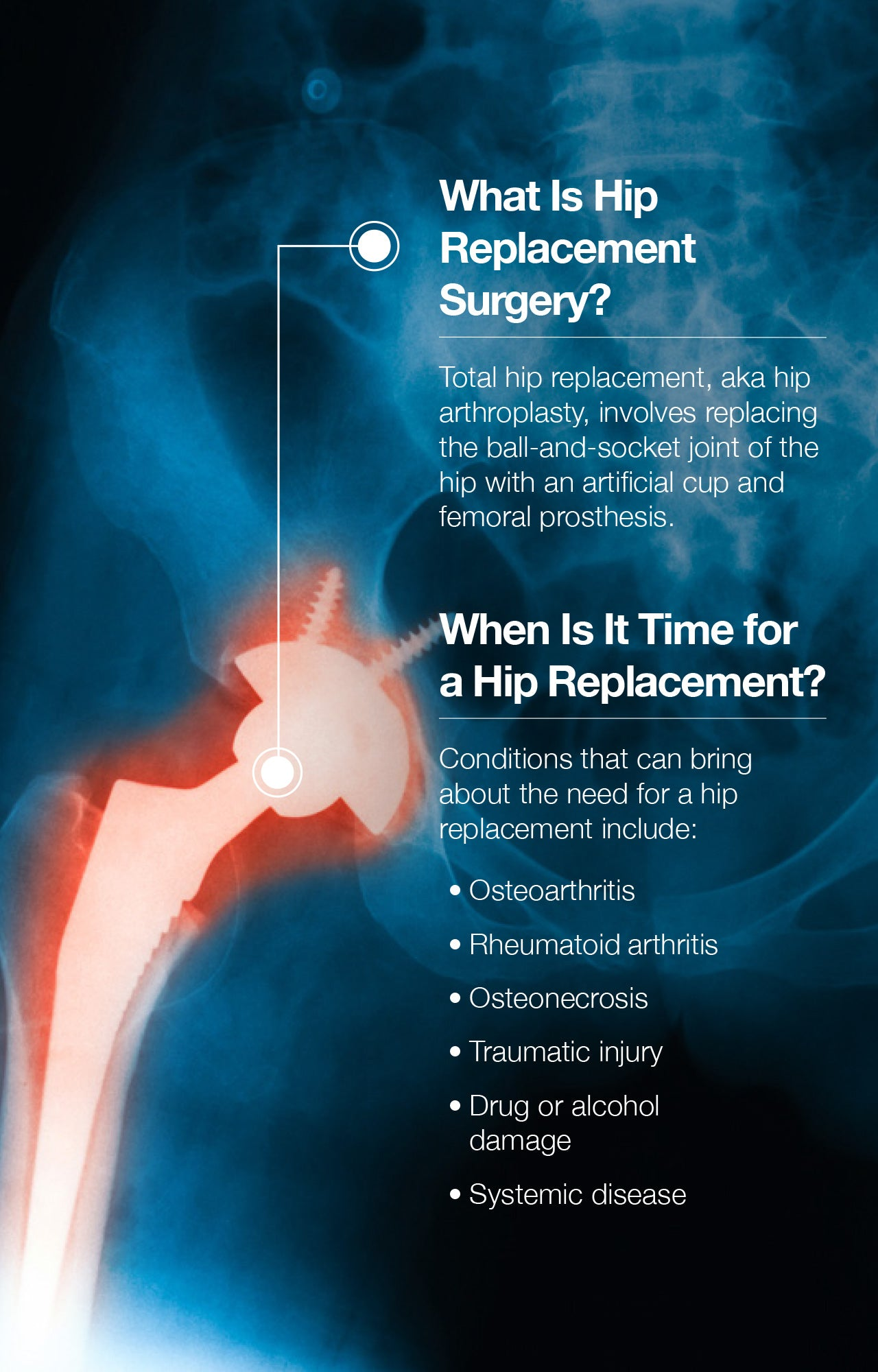 The Step-by-Step Guide to Hip Replacement Recovery