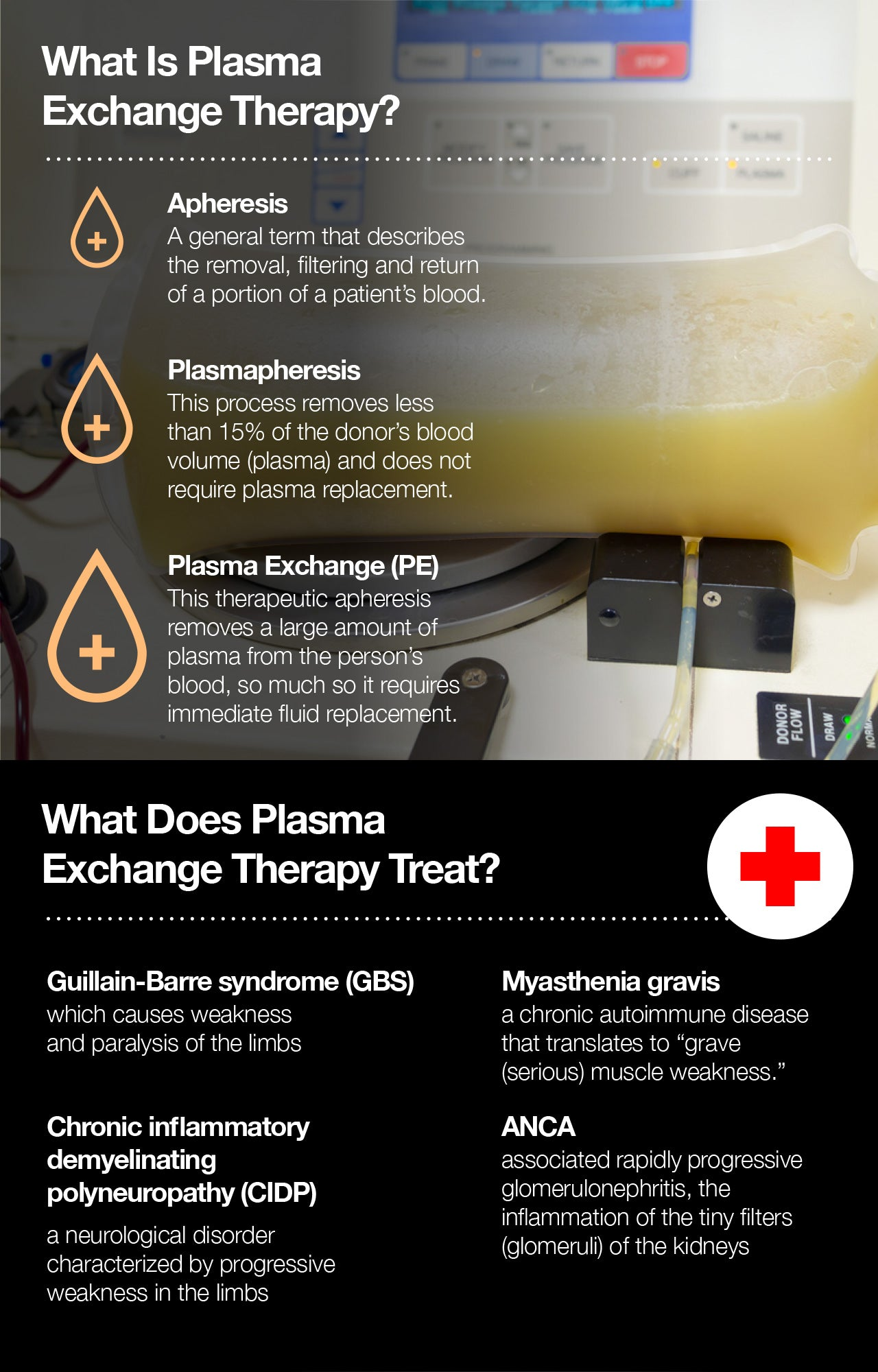 What is plasma exchange therapy?