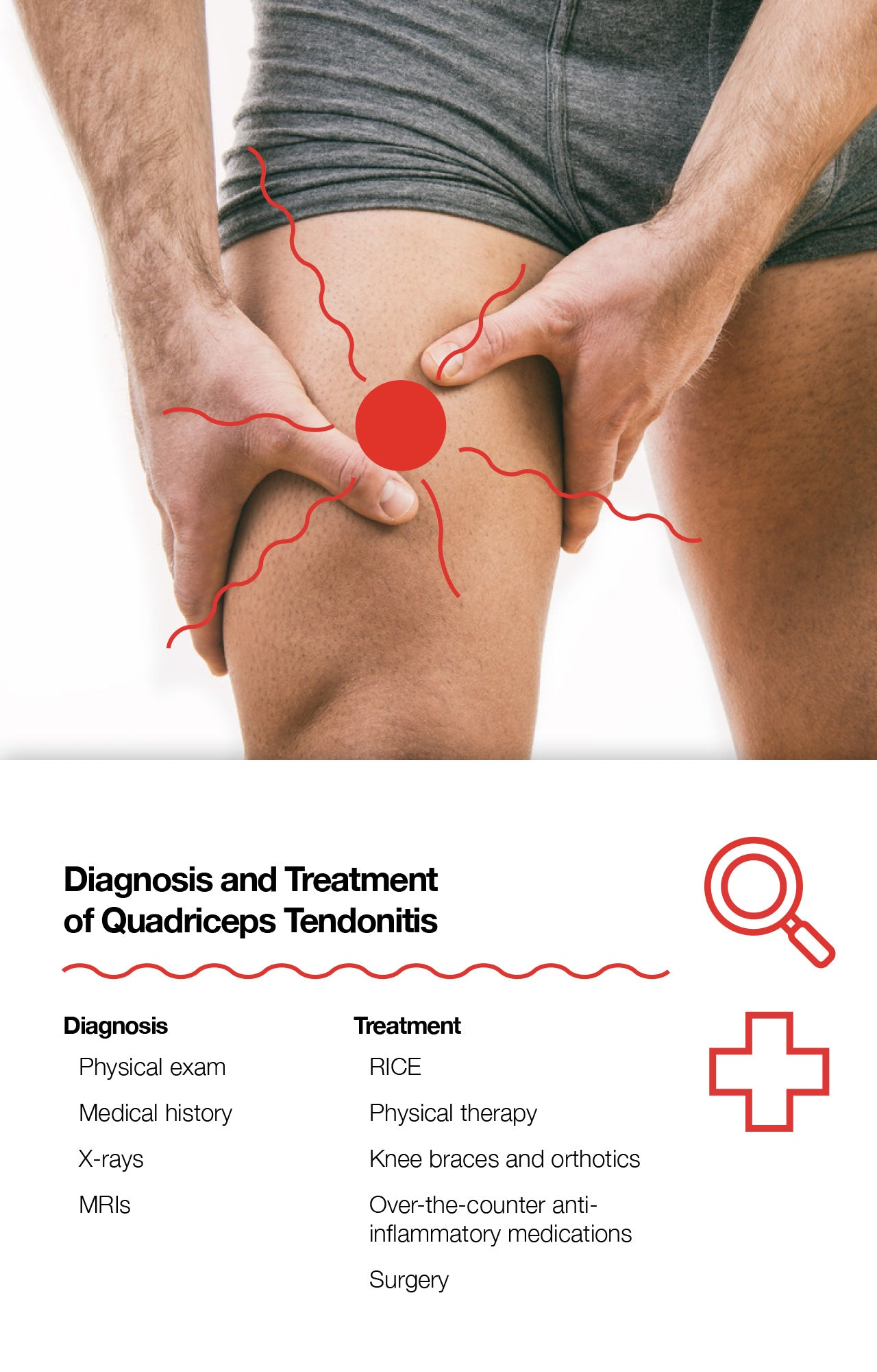Diagnosis and Treatment of Quadriceps Tendonitis