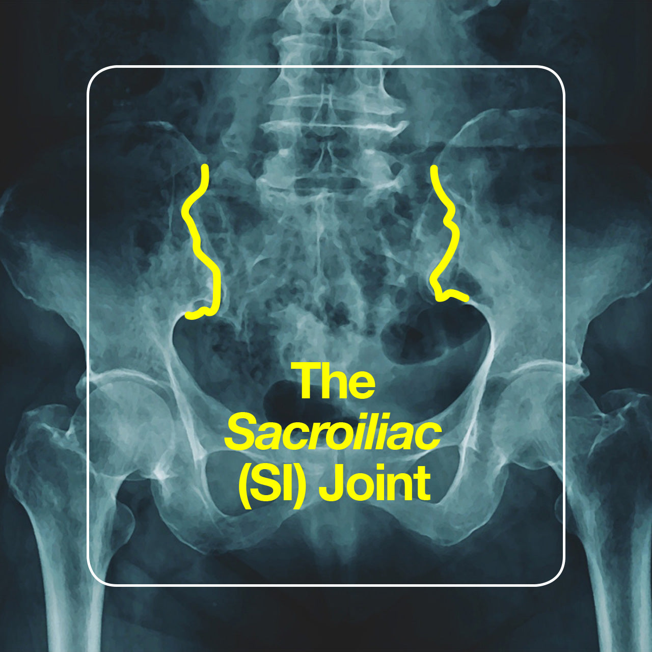 SI joint pain: causes and treatments.