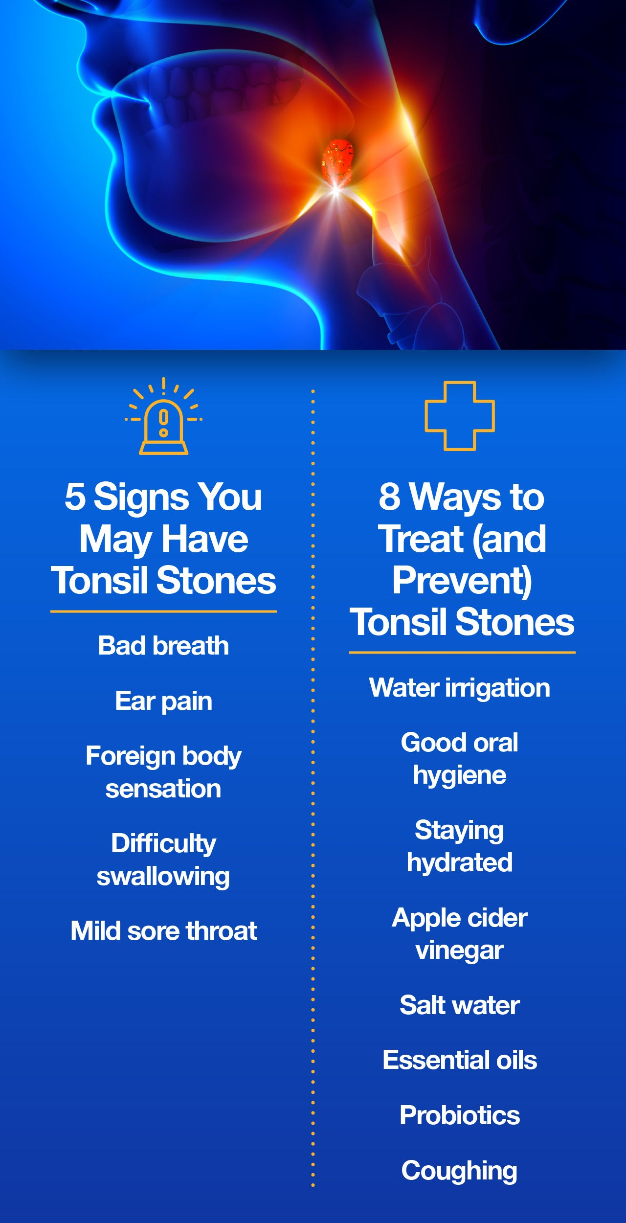 Tonsil stones symptoms and prevention