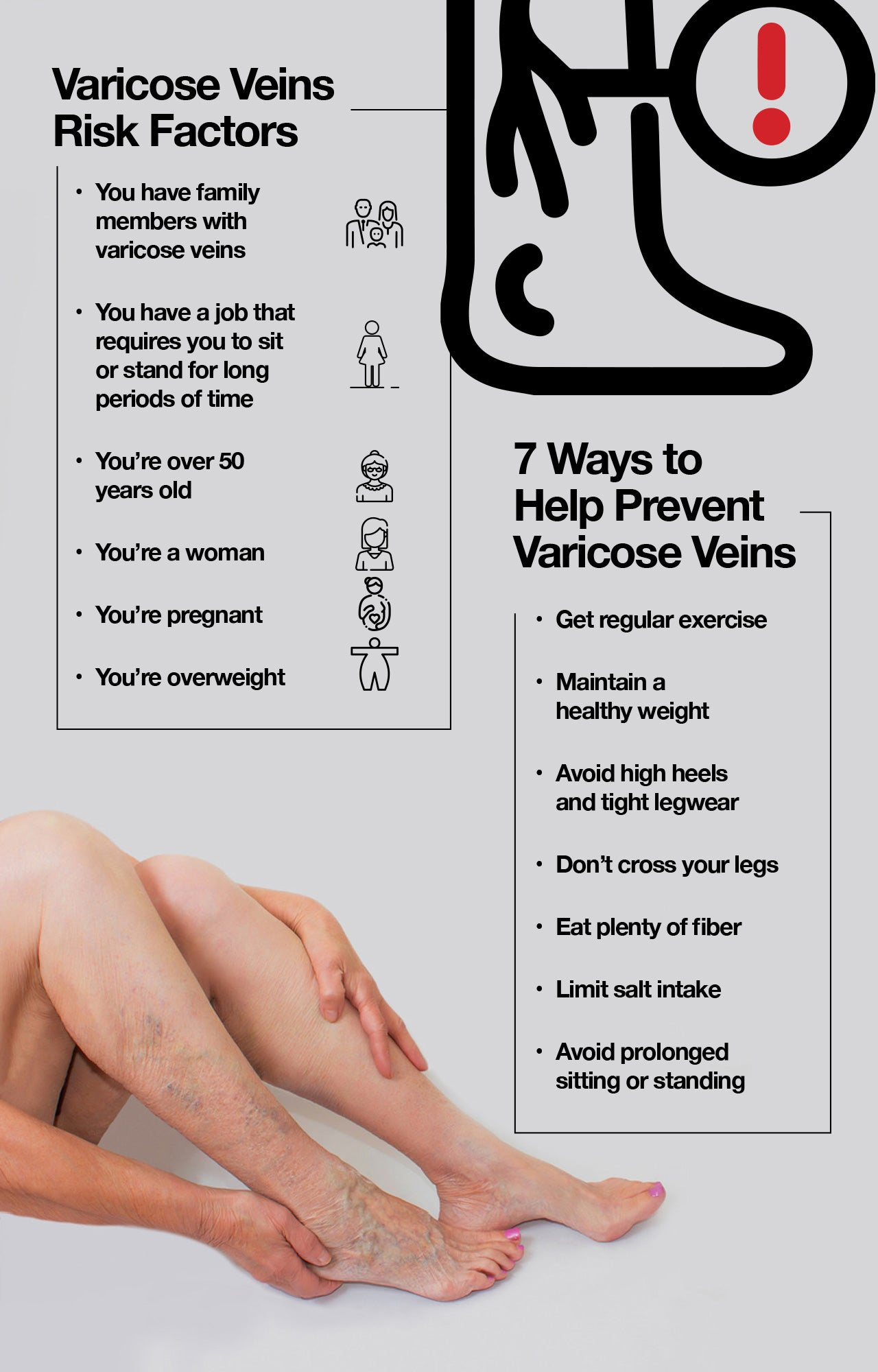Varicose veins risk factors and prevention