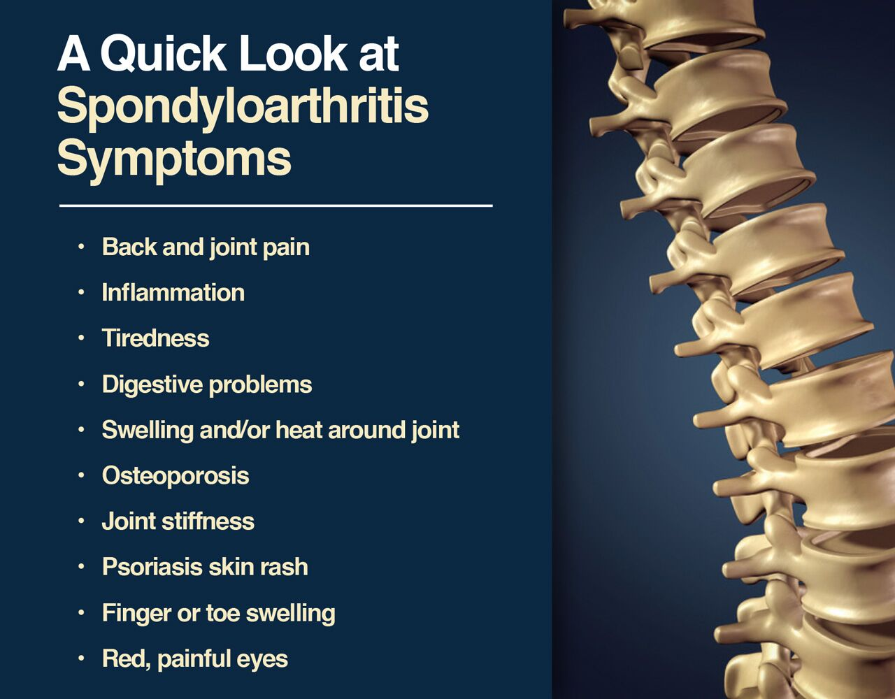 Spondyloarthritis symptoms