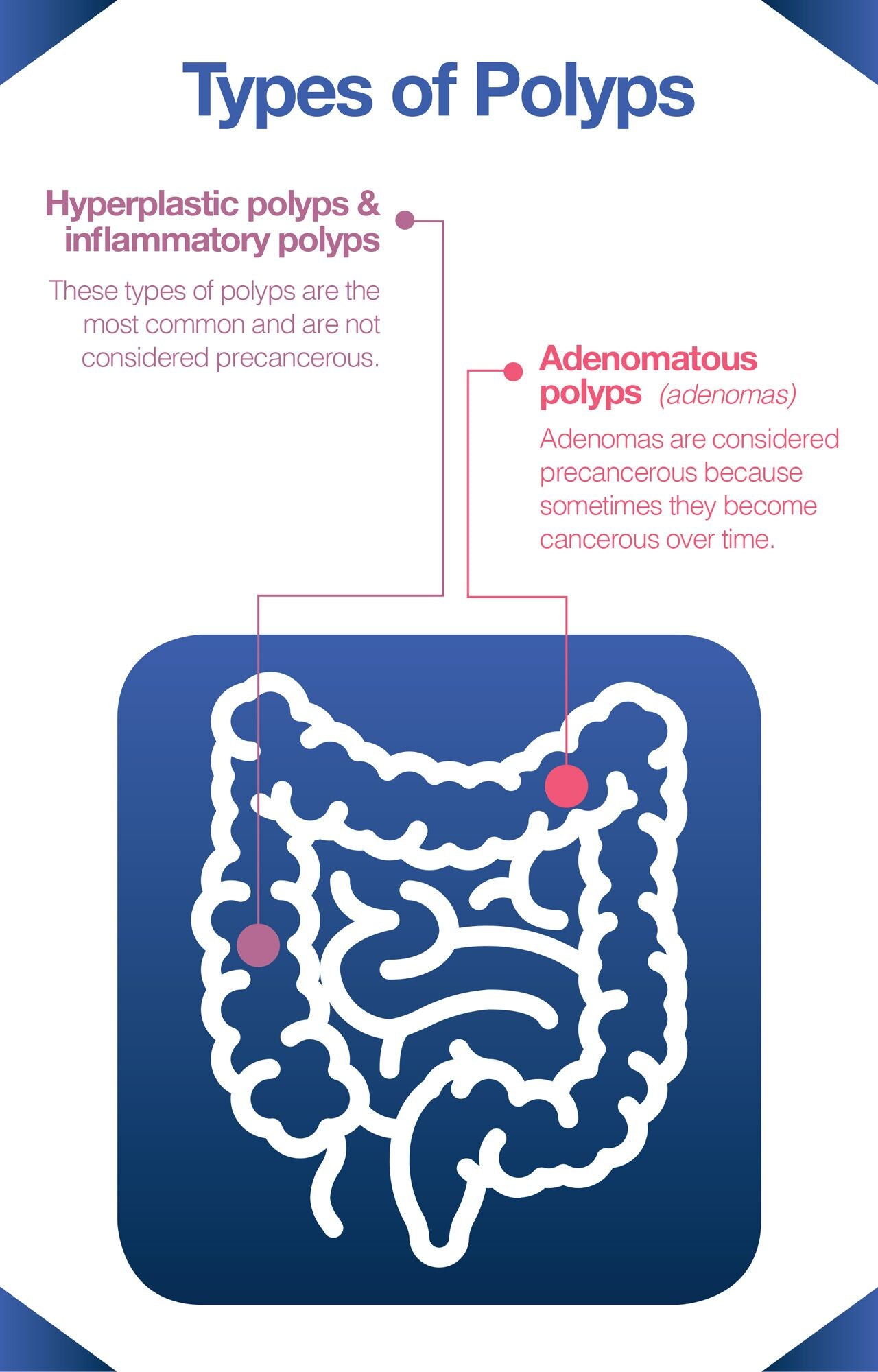 Most colon cancers are caused by polyps.