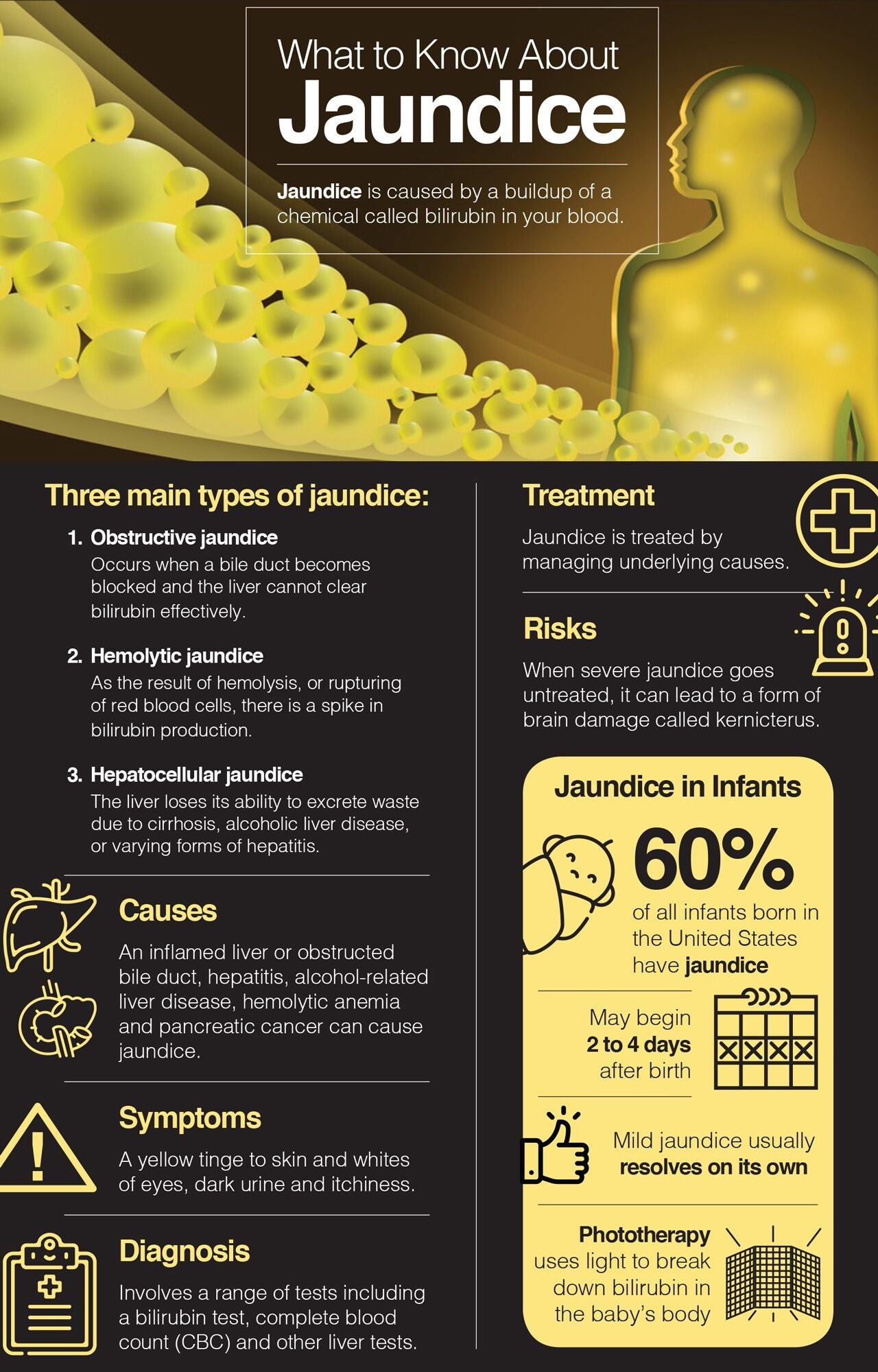 What to know about jaundice