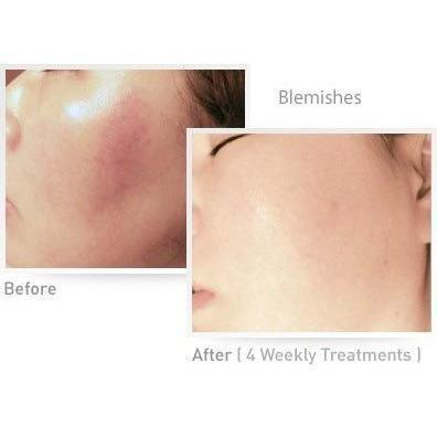 Viss IPL Skin Rejuvenation Bright Amos
