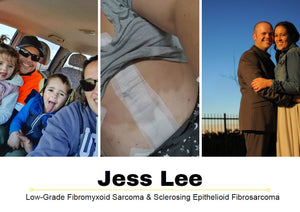 Sarcoma Survivor Stories: Meet Jess Lee