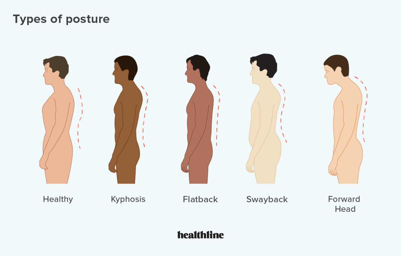 Fix Your Bad Posture Once and For All 4