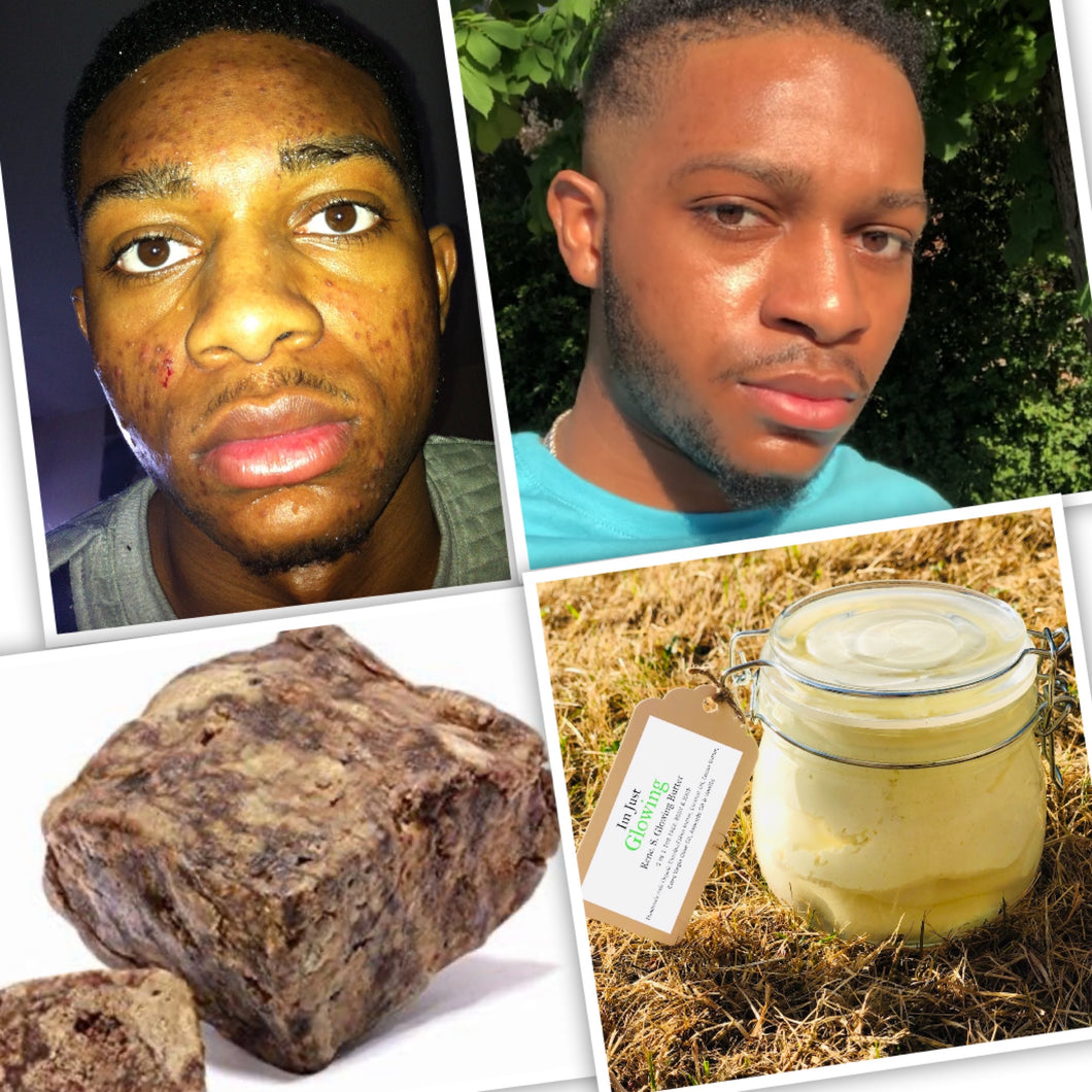 BEST VALUE ~ The Glowing Set: Rene.S.Glowing Butter 500ml + African Black Soap 500grams