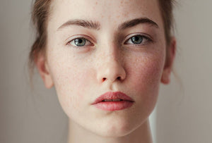 Why Freckles Aren't 'Cute' but Dangerous